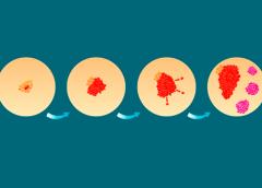 Modelagem teórica da física propõe nova abordagem terapêutica para câncer com metástase